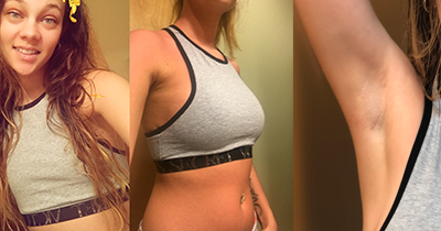 Transaxillary Breast Augmentation In Wisconsin With Dr Bartell
