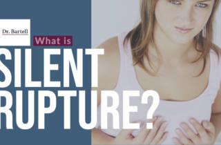 silent implant rupture